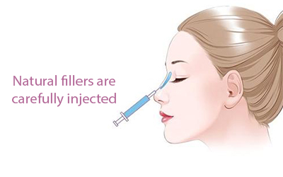 fillers for nose.jpg
