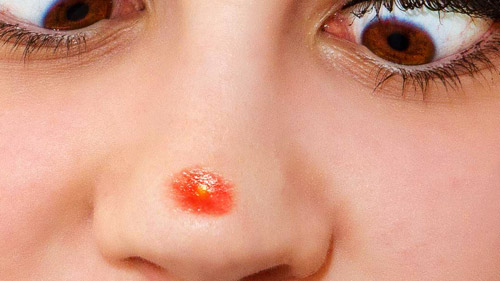 pimples-on-nose.jpg